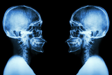X-ray Skull and cervical spine