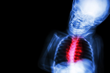 "X-ray child's body with ""Congenital heart disease"""