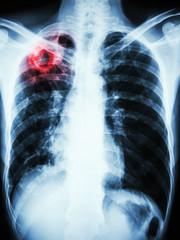 Mycobacterium tuberculosis infection (Pulmonary Tuberculosis)