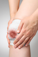 Injured knee with bloody bandage