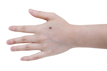close up image  of mole on woman hand