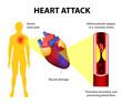 heart attack - 70059927