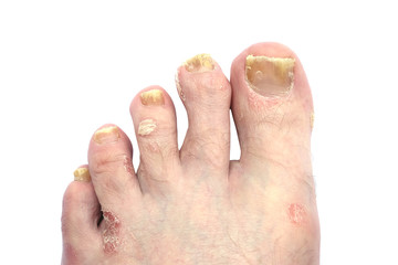 Psoriasis and Psoriatic Arthritis of the Toe Nails and Foot