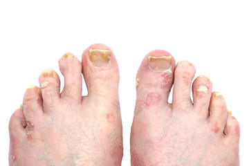 Psoriasis and Psoriatic Arthritis of the Toe Nails and Feet