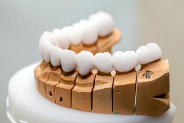 Zirconium Porcelain Tooth plate in Dentist Store