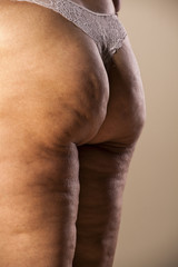 fat female buttocks with cellulite and stretch marks
