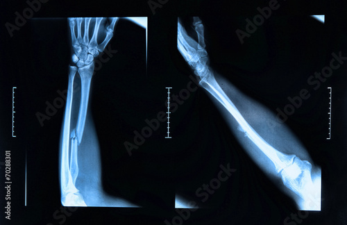 Arm fracture seen on x-ray - 70288301