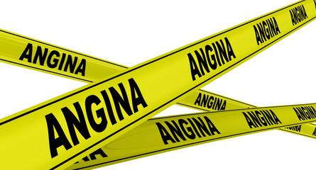Ангина (angina). Желтая оградительная лента