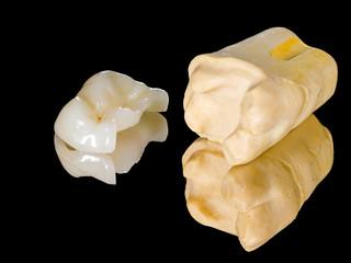 Ceramic inlay