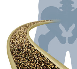 Osteoporosis Medical Illustration