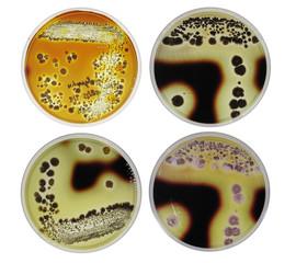 Microbiology strach agar test by bacteria