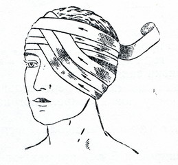 Bandaging one eye