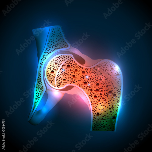 Human hip joint and Osteoporosis - 70564751