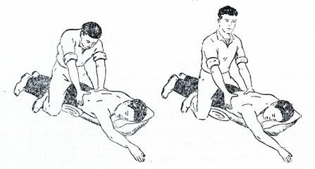 Artificial respiration (Schaefer's method)