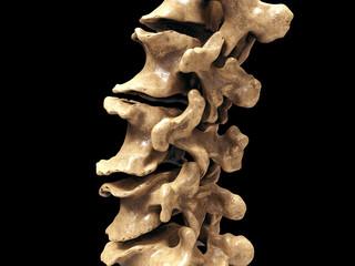 lumbar vertebra spine arthritis