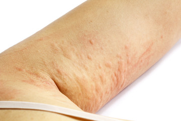 allergic rash skin of patient arm