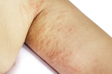 allergic rash skin of patient arm