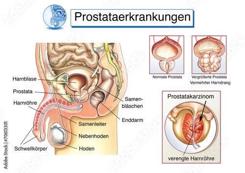 prostata urologe