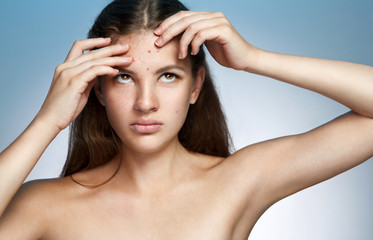 Ugly problem skin girl. Woman skin care concept