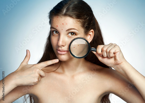 Girl with a pimply face holding magnifying glass. skin care