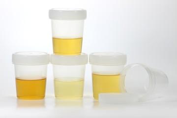 Urinprobe01