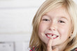 Child missing front tooth - 70686501