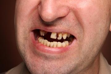Bad teeth smoker