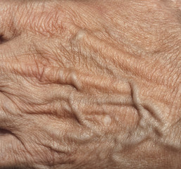 wrinkled woman skin on hand