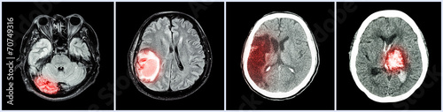 Collection CT scan of brain and multiple disease - 70749316