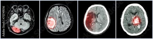 Leinwandbild Motiv Collection CT scan of brain and multiple disease