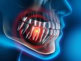 Zahnschmerz