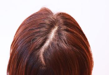 30代女性の髪の毛