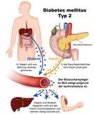 diabetes mellitus typ 2, illustration mit beschreibung deutsch