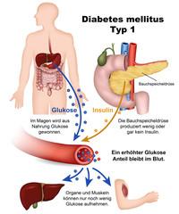 diabetes mellitus typ 1, illustration mit beschreibung, deutsch