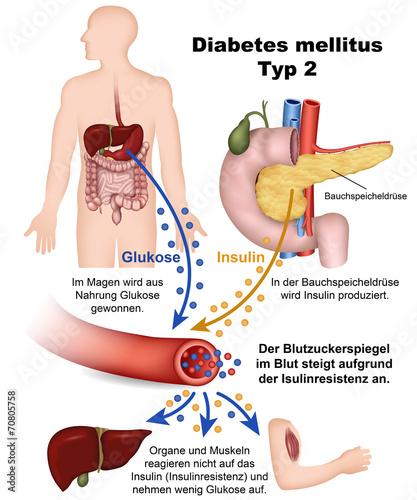 diabetes mellitus typ 2, illustration mit beschreibung deutsch - 70805758