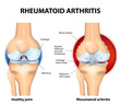 Normal Joint and Rheumatoid Arthritis - 70814564