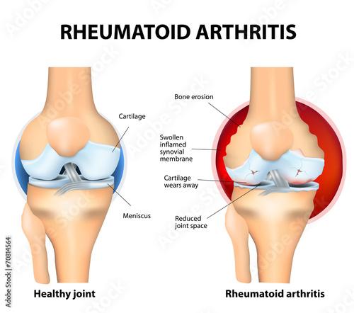 Zwykłe stawowe i reumatoidalne zapalenie stawów