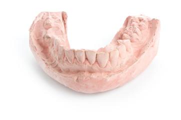 Plaster model teeth