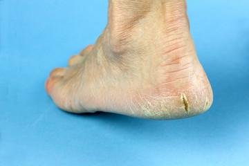 Cracked heel on blue background