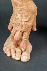 Rrheumatoid arthritis hand and toe deformities