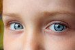 teen's blue eyes staring up