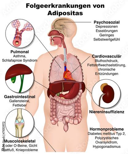 Folgeerkrankungen von Adipositas, Übergewicht