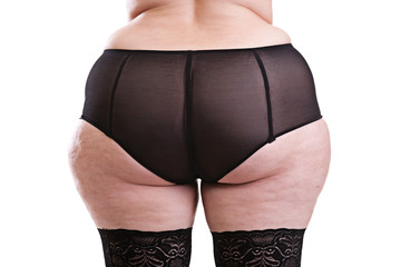 Part of the body behind the girl with cellulite