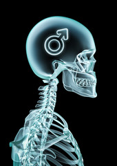X-ray male thinking