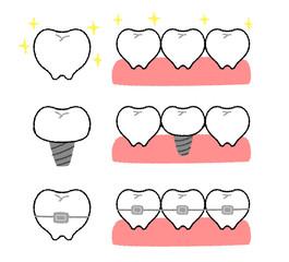 歯の矯正とインプラント