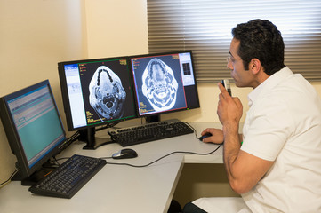 Male doctor examining brain MRI scan on computer