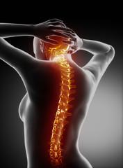 Female backbone anatomy - cervical spine pain