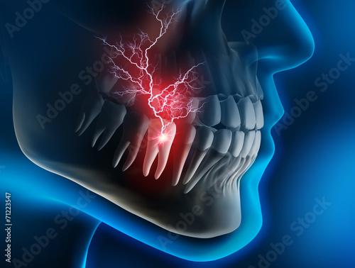 Leinwanddruck Bild Akute Zahnschmerzen