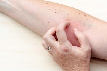 Juckender Hautausschlag