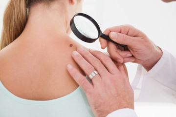 Doctor examining a brown spot